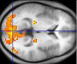 brain-scan-wikipedia